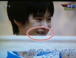 宮下遥選手の前歯の画像
